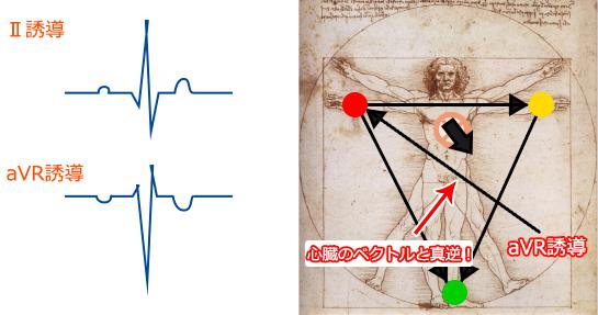 aVR誘導の説明
