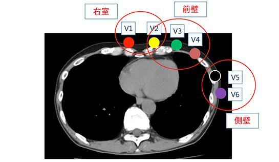 12誘導(胸部誘導)の心筋ターゲット