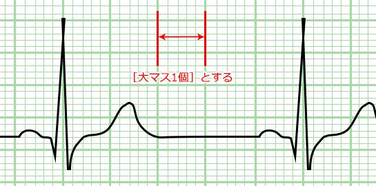 心電図の目盛り 大マス