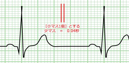 心電図の目盛り 小マス