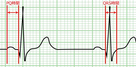 心電図の目盛り PQ時間 QRS時間